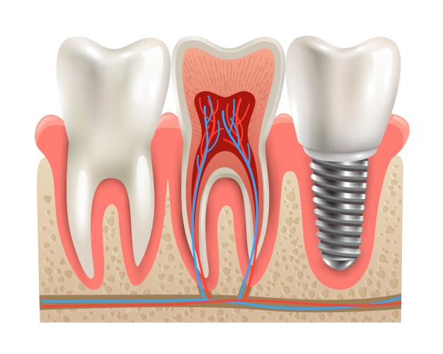 Dental Implant in Noida