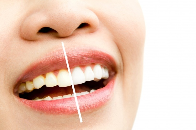 Teeth Cleaning Treatment Noida